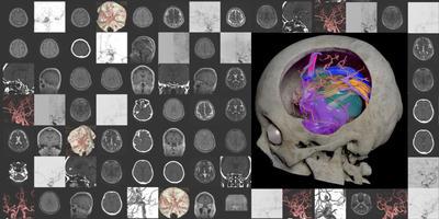 脳神経外科医が 3D CG による可視化で切り開く未来の医療